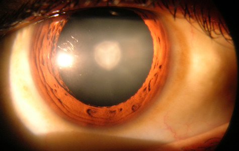 FAU study working to eliminate cataract surgery