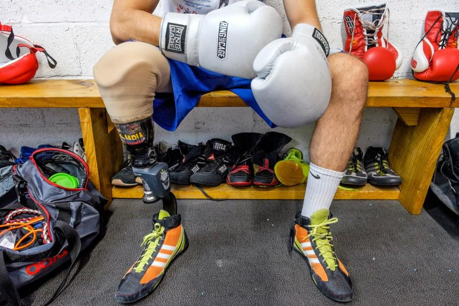 Andres Felipe Diaz Mateus' prosthetic leg is made with carbon fiber from ashes of volcanoes, and has a sticker representing his native country of Colombia. Mohammed F. Emran | Staff Photographer