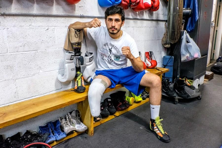 Diaz Mateus poses with his prosthetic leg off. Mohammed F. Emran | Staff Photographer